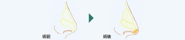 鼻先吊り下げ(耳介軟骨移植法)