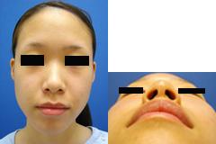隆鼻、鼻翼外側前HP_b.jpg