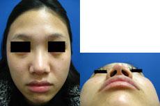 鼻翼縮小⑥術前.jpg