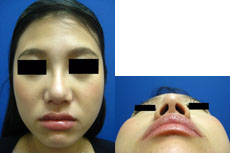 鼻翼縮小⑥術後2.jpg