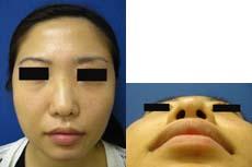 鼻翼縮小術前⑤.jpg