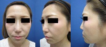 隆鼻⑫後1.jpg