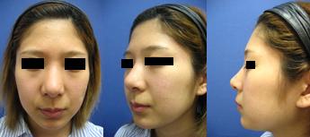 隆鼻術前⑤PC.jpg