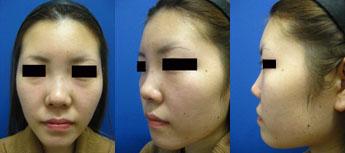 隆鼻術前⑰.jpg