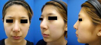 隆鼻術後⑤PC.jpg
